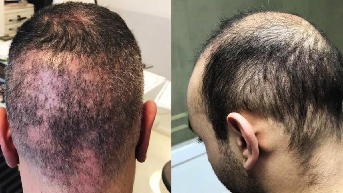Complicaciones de Trasplante de pelo