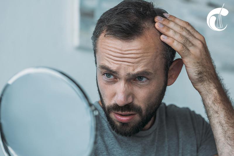trasplante de pelo, implante de pelo en santiago de los caballeros